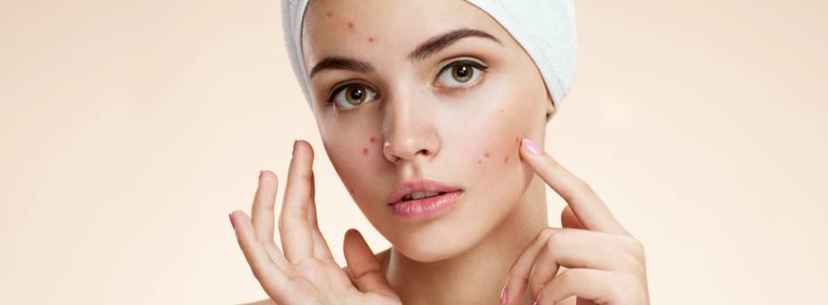 Jak dbać o skórę z trądzikiem różowatym?